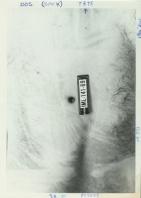 Figure 4. Plaie située au bas du dos de L.-G. Dupont. On constate bien la collerette érosive autour de la perforation, ce qui est un aspect caractéristique d'une plaie d'entrée.