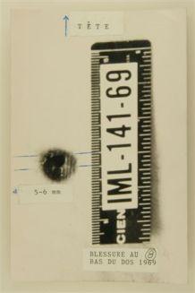 Figure 5. Gros plan de la plaie au dos de L.-G. Dupont apparaissant à la figure 4.