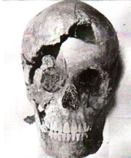 Le crâne de Denise Therrien prouve qu'elle a reçu au moins deux coups très violents à la tête.