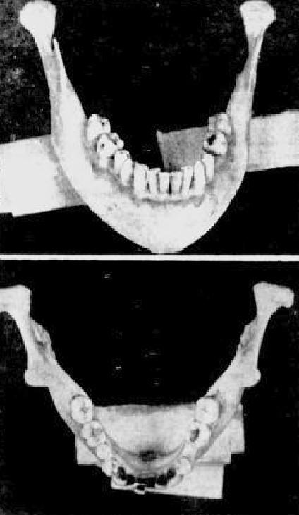 mâchoires 1953