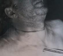 Photo judiciaire du corps de Pierre Laporte