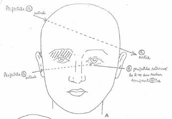 Croquis du Dr André Lauzon démontrant les trajectoires des projectiles A et B dans la tête de Mario Corbeil.